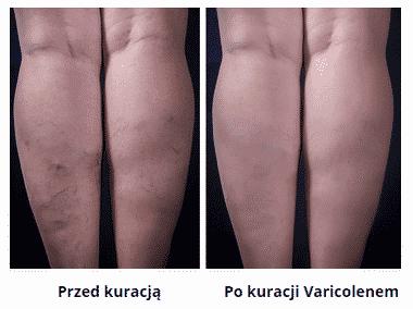 varicolen efekty