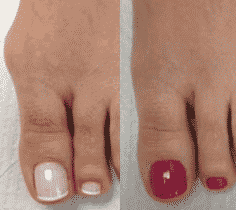 Vellafoot efekty
